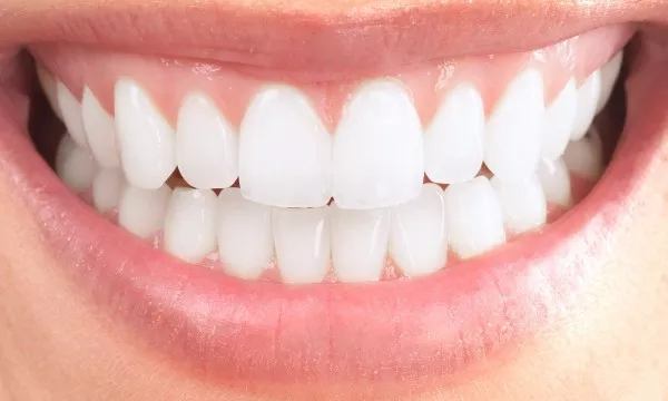 How To Achieve A Brighter Smile!